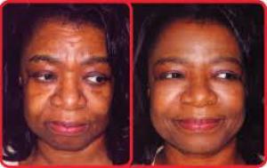 Best skin lightening cream products