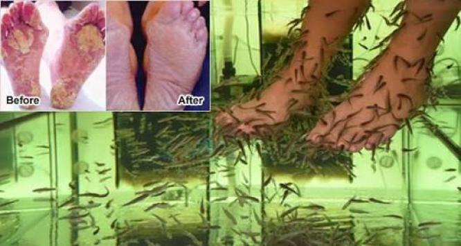 Garra rufa doctor fish