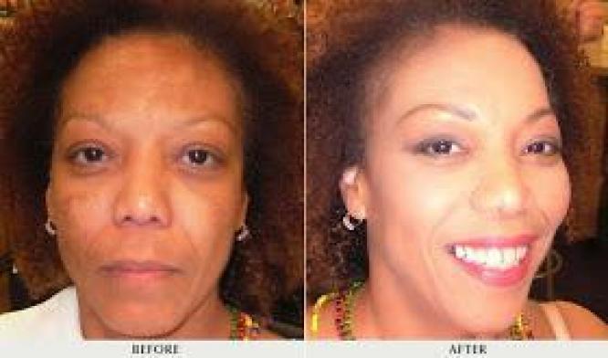 Pure Natural Skin Whitening, Skin Lightening, and Skin Bleaching