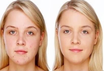 ... ROLLYHAMPY PRODUCTS SKIN LIGHTENING/SKIN WHITENING CREAMS AND PILLS  sc 1 st  Free Classifieds on Public Ads South Africa & ROLLYHAMPY PRODUCTS SKIN LIGHTENING/SKIN WHITENING CREAMS AND ... azcodes.com