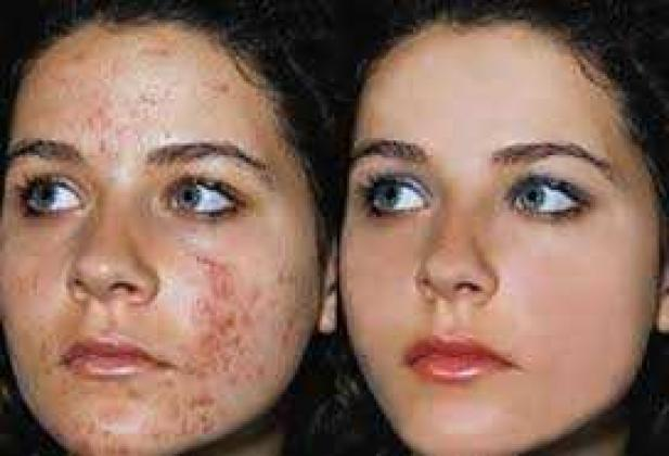 Correct your skin with Rollyhampy skin care products