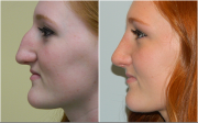 Rhinoplasty in South Africa