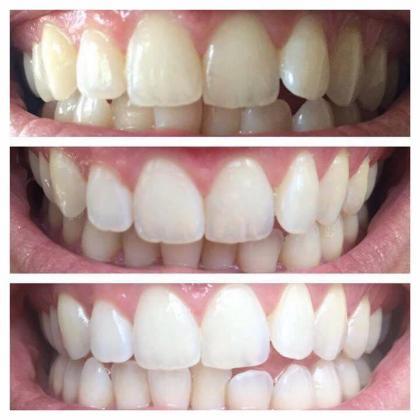AP Whitening Toothpaste!