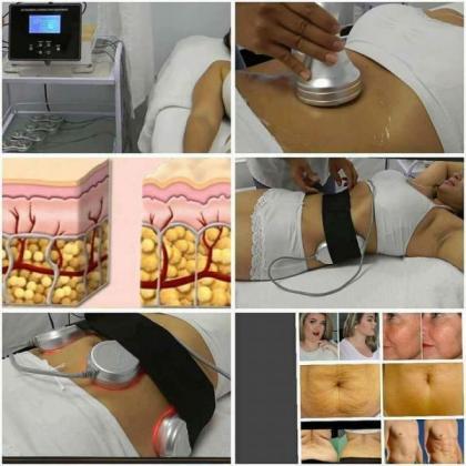 Laser Liposuction Machine - A Bargain For R45,000 in Robertsham, Gauteng