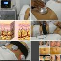 Laser Liposuction Machine - A Bargain For R45,000