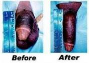 SIZE MATTERS MENS CLINIC ENLARGEMENT CREAM/PILLS FOR SALE IN DURBAN EAST LONDON  CAPE TOWN 078731921