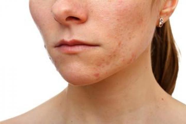 Dermatologist Port Elizabeth