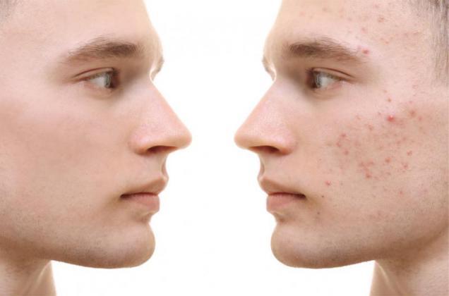 Skin cancer Port Elizabeth