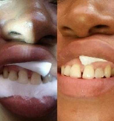 Pro Cosmetic Dental Studio in Nkowankowa, Limpopo